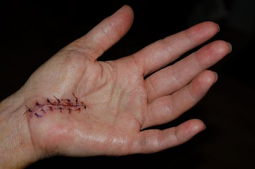carpal-tunnel-surgery-main_full.jpg
